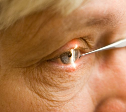 Early Stage Macular Degeneration Laser Treatment