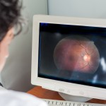 New Retinal Scan Predicts Macular Degeneration Progression