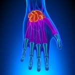 7 Carpal Tunnel Syndrome Fixes