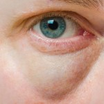 8 Natural Remedies for Bags Under Your Eyes