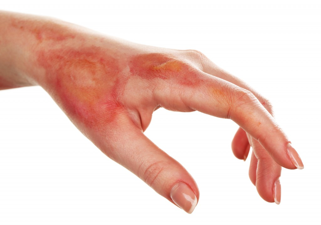 5 Natural Minor Burn Remedies