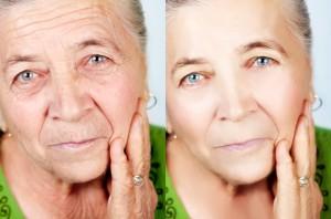 Retinol reduces wrinkles.