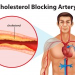 Alternative Remedies for High Cholesterol