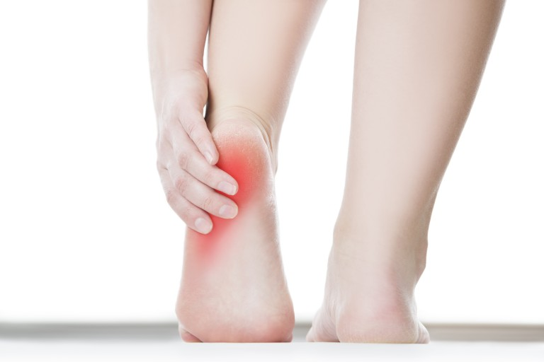 5 Steps to Treating Plantar Fasciitis