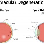 Surprising Risks Reported Linked to Macular Degeneration