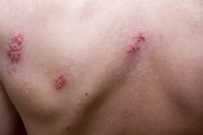 12 Natural Treatments for Shingles