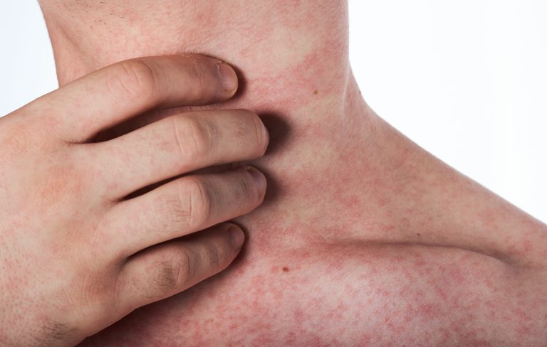 6 Natural Ways to Treat a Rash