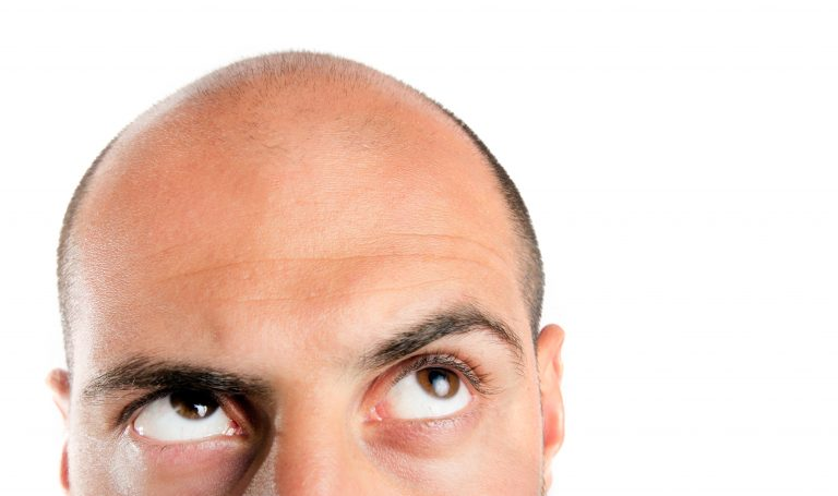 5 Natural Topical Remedies to Combat Baldness