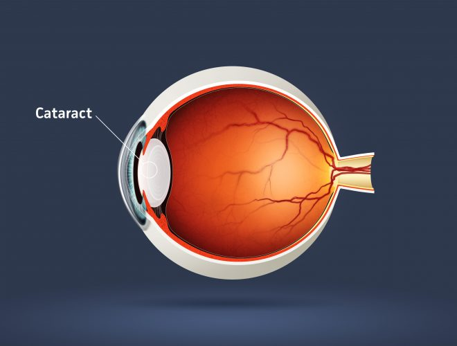 The Future of Non-Surgical Cataract Treatment
