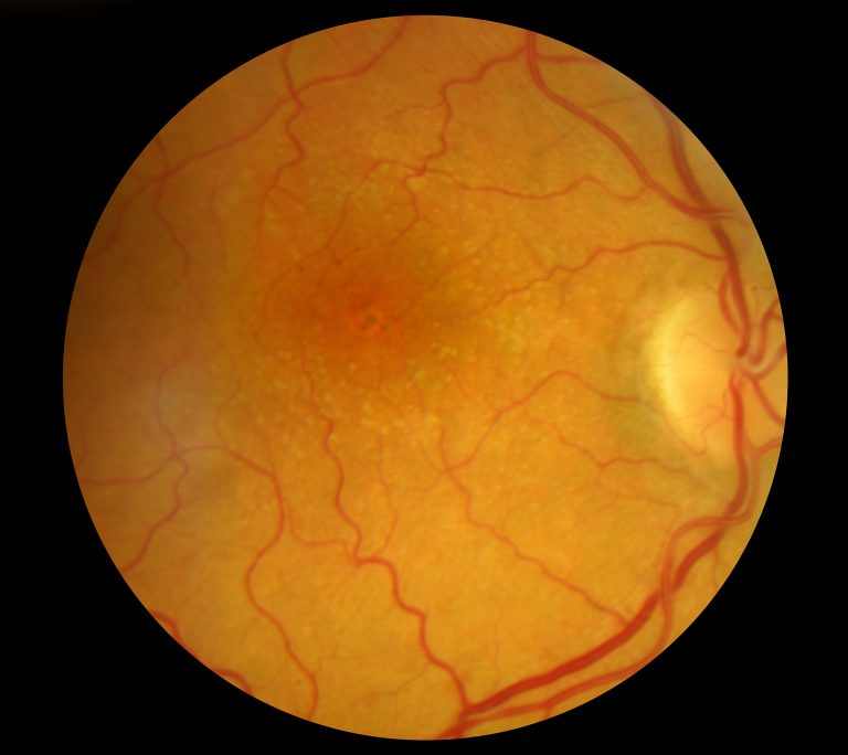 Macular Degeneration: Retina Patch, Tracker and Protein