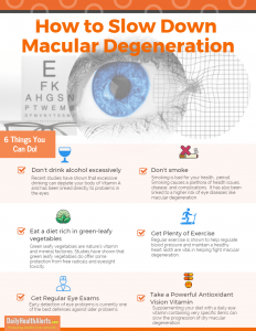 Infographic explains how to slow down macular degeneration.