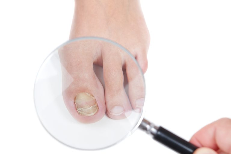3 Natural Remedies for Toenail Fungus