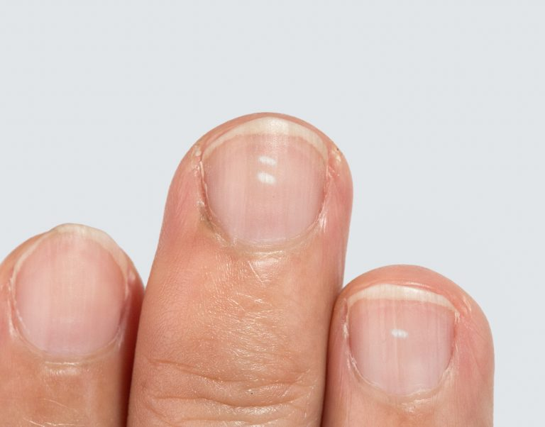 Your Fingernails May Be Telling You Something