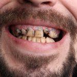 5 Habits That Ruin Your Teeth