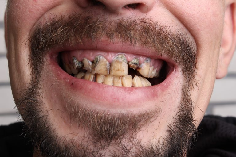 5 Habits That Ruin Your Teeth