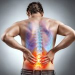 Natural Fixes for Sciatica
