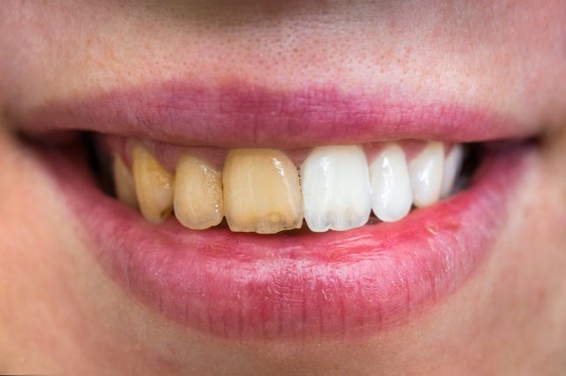 Surprising Natural Remedies For Yellowing Teeth