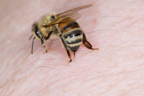 Bee Venom Therapy-Cure to Many Ailments?