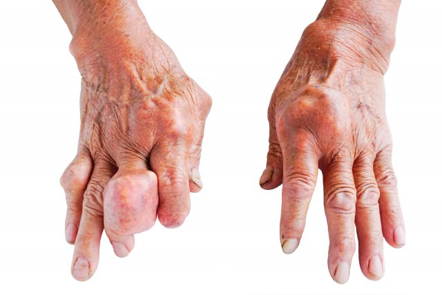 Diabetes, Insomnia and Gout Linked to AMD