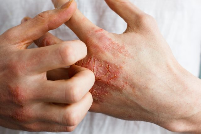 Skin Formula: 3 Natural Remedies for Eczema