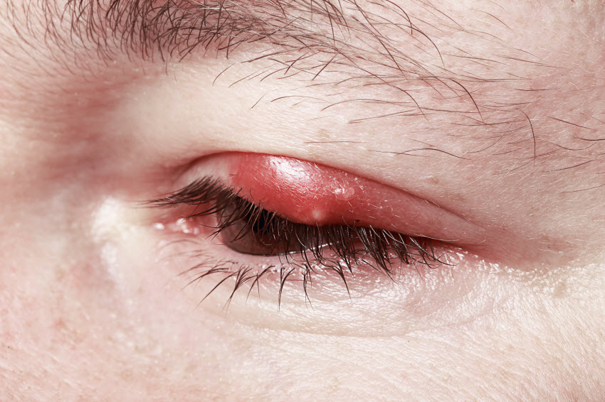 3 Natural Remedies for Stye Relief