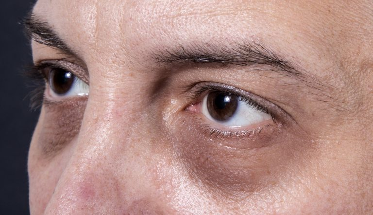 Stop Dark Circles Naturally