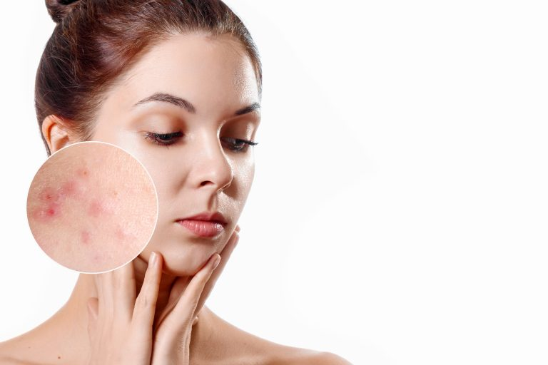 5 Vitamin Remedies for Acne