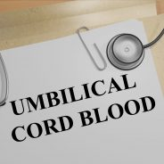Umbilical Cord Cells May Help Cure Macular Degeneration