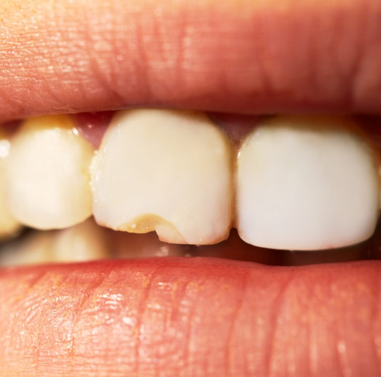 7 Major Mistakes That Damage Our Teeth