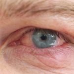 Acupuncture Treats Dry Eye Syndrome