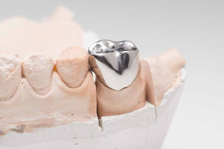 Why the steel crown is used to cure chronic dental diseases?