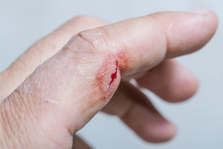 4 Natural Home Wound Healing Hacks