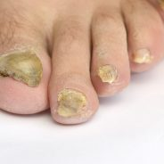 Home Remedy Toenail Fungus Fixes