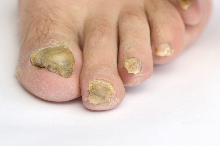 Home Remedy Toenail Fungus Fixes
