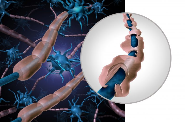 Naturally Protect Myelin Sheath to Support Your Aging Brain