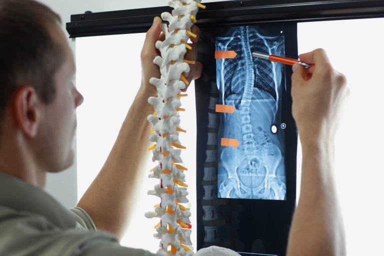 Scoliosis Stretches that Work